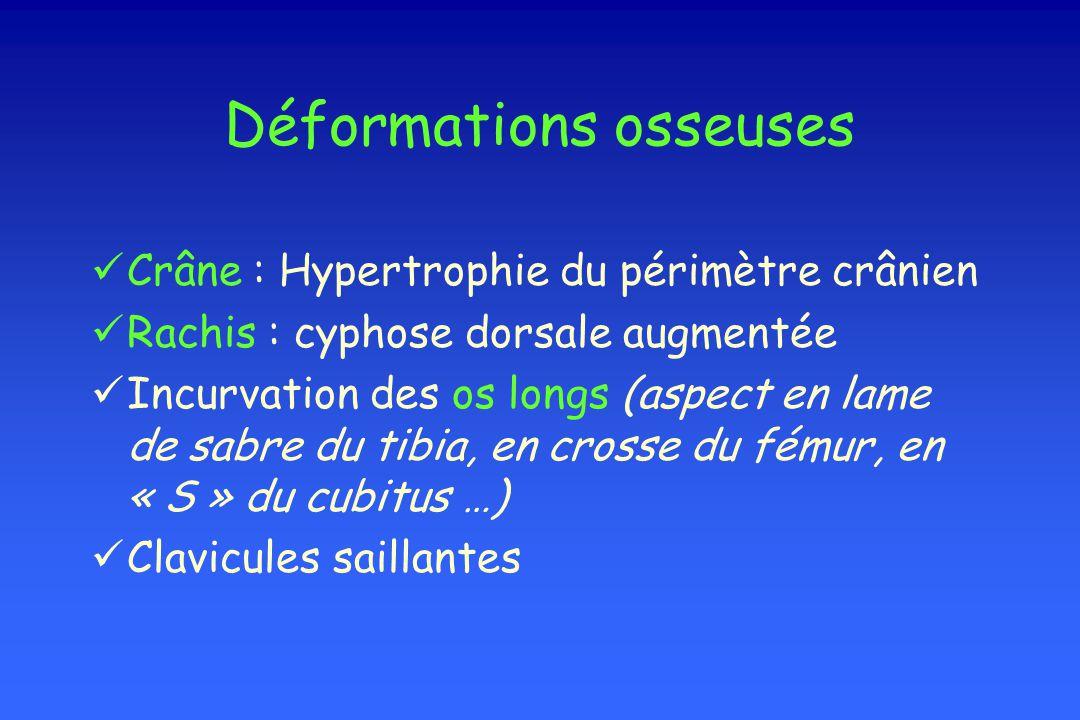 Déformations osseuses Crâne : Hypertrophie du périmètre crânien Rachis : cyphose dorsale augmentée Incurvation des os longs (aspect en lame de sabre d