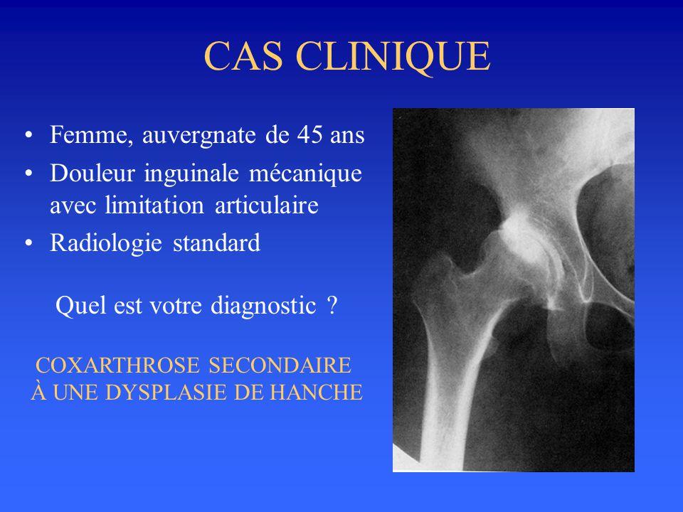 CAS CLINIQUE Femme, auvergnate de 45 ans Douleur inguinale mécanique avec limitation articulaire Radiologie standard Quel est votre diagnostic ? COXAR