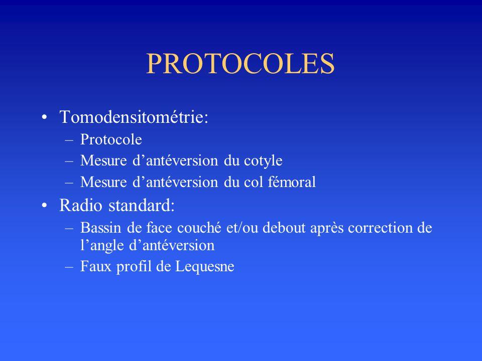 PROTOCOLES Tomodensitométrie: –Protocole –Mesure dantéversion du cotyle –Mesure dantéversion du col fémoral Radio standard: –Bassin de face couché et/
