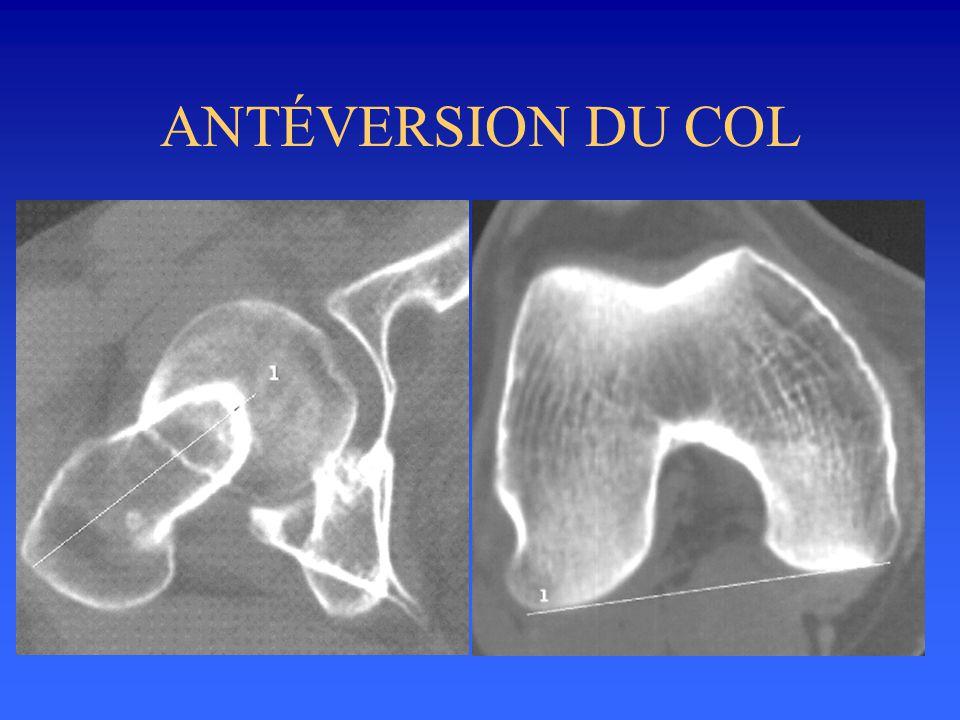 ANTÉVERSION DU COL