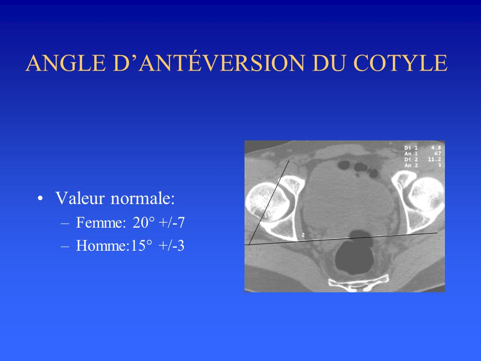 ANGLE DANTÉVERSION DU COTYLE Valeur normale: –Femme: 20° +/-7 –Homme:15° +/-3