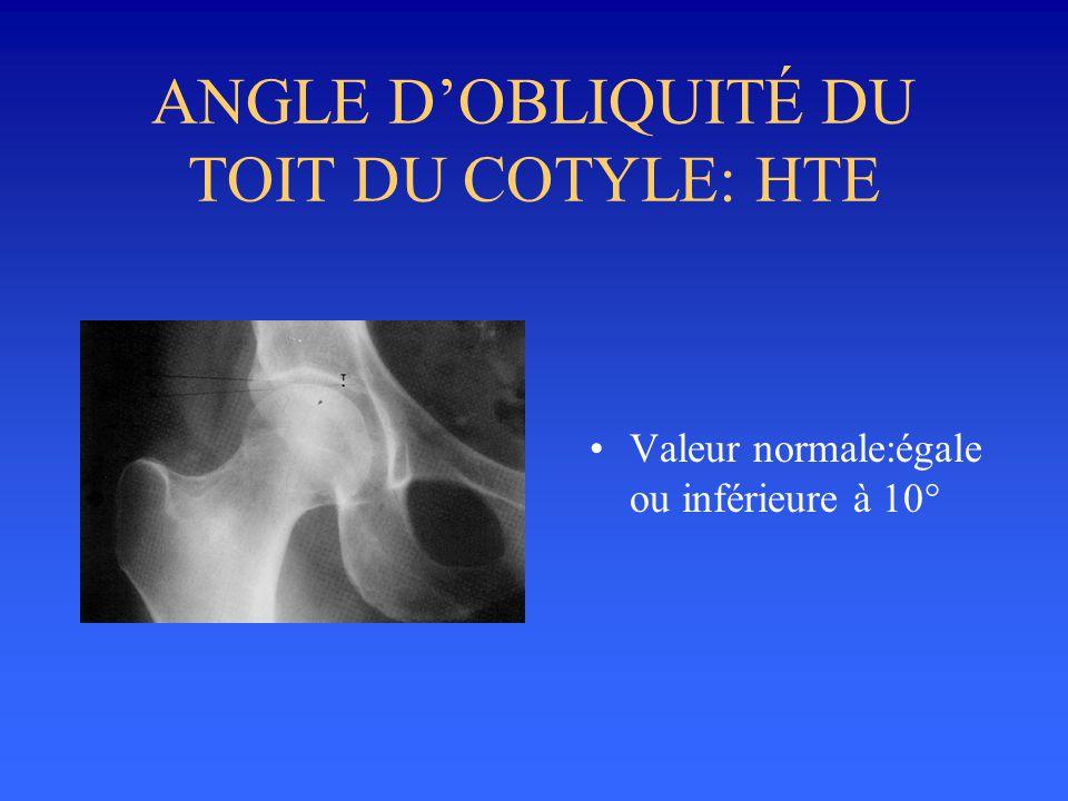 ANGLE DOBLIQUITÉ DU TOIT DU COTYLE: HTE Valeur normale:égale ou inférieure à 10°