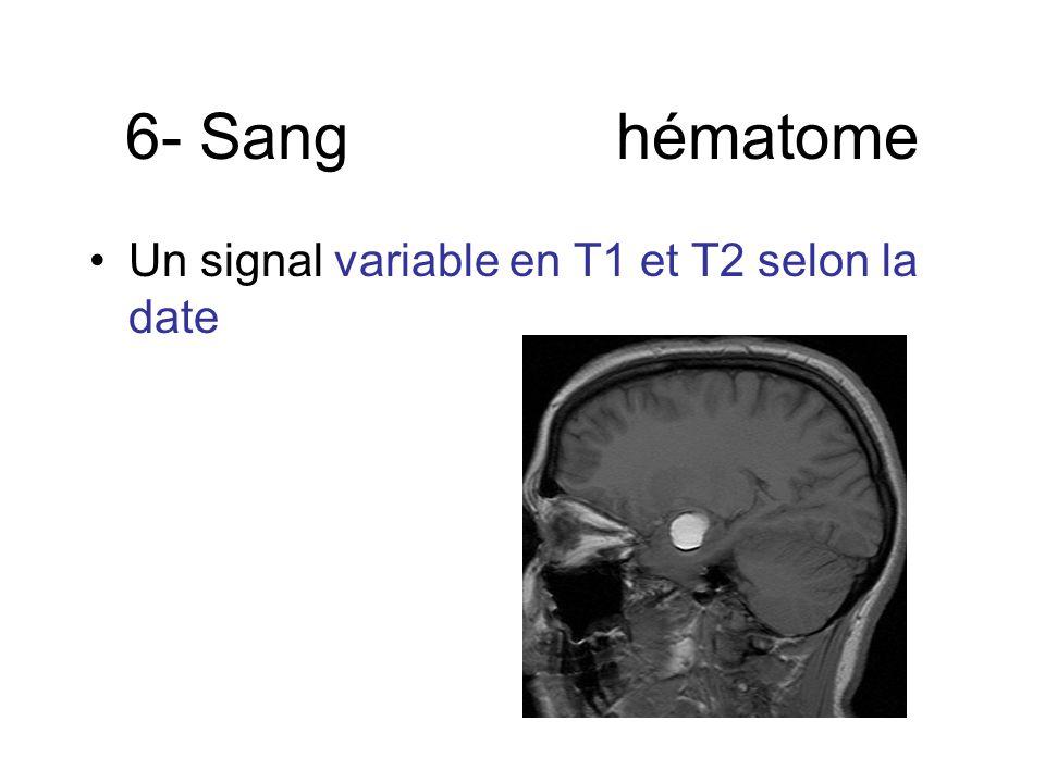 6- Sang hématome Un signal variable en T1 et T2 selon la date
