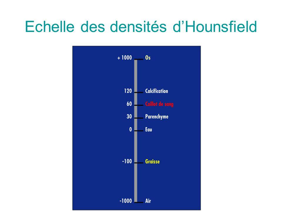 Echelle des densités dHounsfield