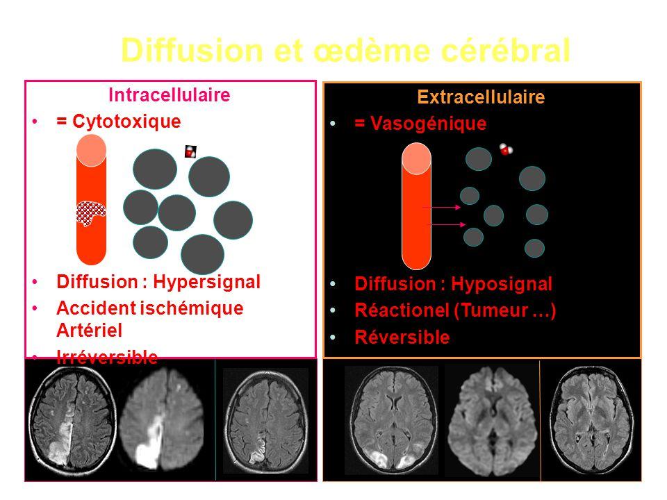 Diffusion et œdème cérébral Extracellulaire = Vasogénique Diffusion : Hyposignal Réactionel (Tumeur …) Réversible Intracellulaire = Cytotoxique Diffusion : Hypersignal Accident ischémique Artériel Irréversible