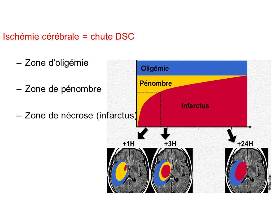 Ischémie cérébrale = chute DSC –Zone doligémie –Zone de pénombre –Zone de nécrose (infarctus)