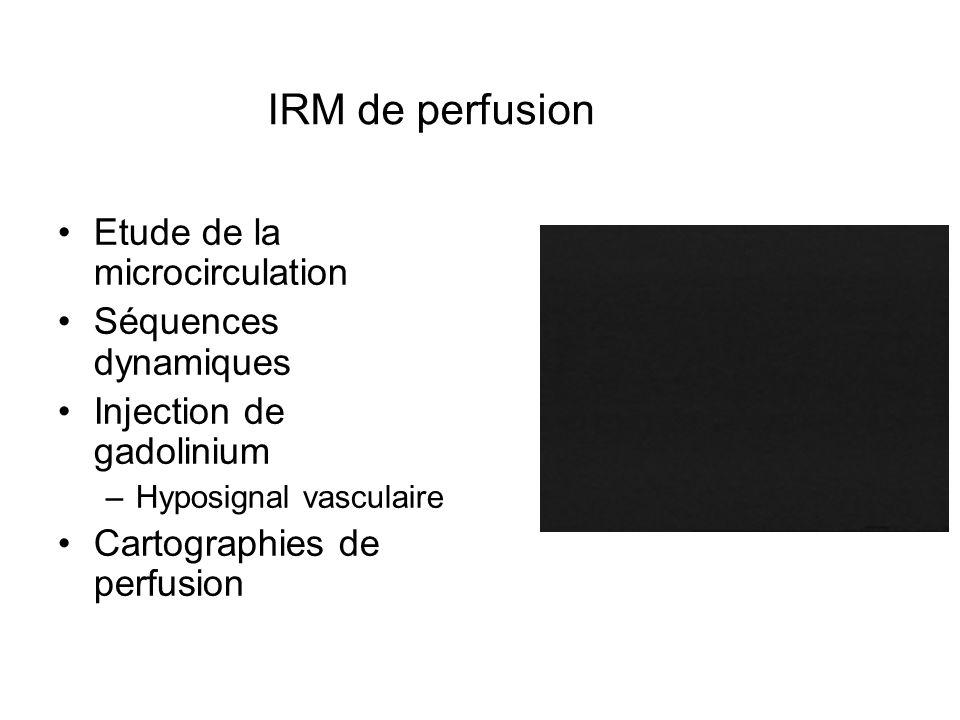 Etude de la microcirculation Séquences dynamiques Injection de gadolinium –Hyposignal vasculaire Cartographies de perfusion IRM de perfusion