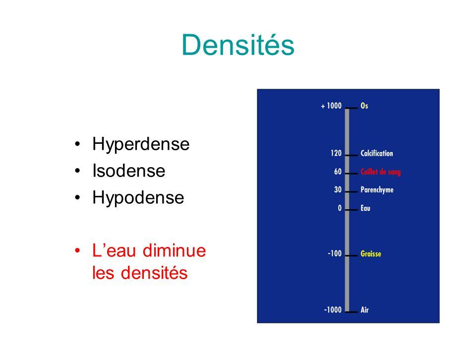 Densités Hyperdense Isodense Hypodense Leau diminue les densités