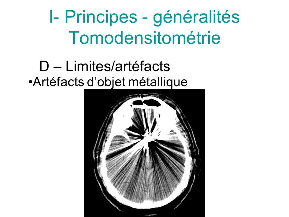 I- Principes - généralités Tomodensitométrie D – Limites/artéfacts Artéfacts dobjet métallique