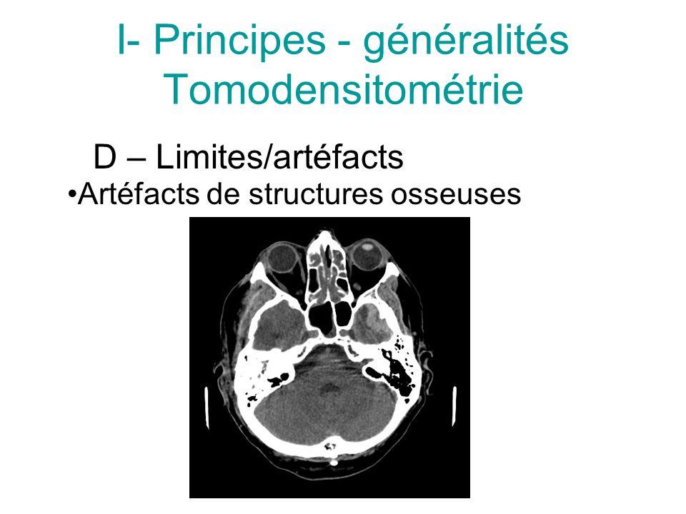 I- Principes - généralités Tomodensitométrie D – Limites/artéfacts Artéfacts de structures osseuses