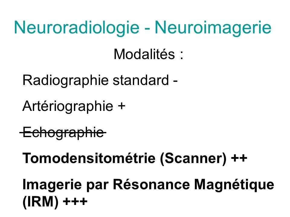 Neuroradiologie - Neuroimagerie Modalités : Radiographie standard - Artériographie + Echographie Tomodensitométrie (Scanner) ++ Imagerie par Résonance Magnétique (IRM) +++