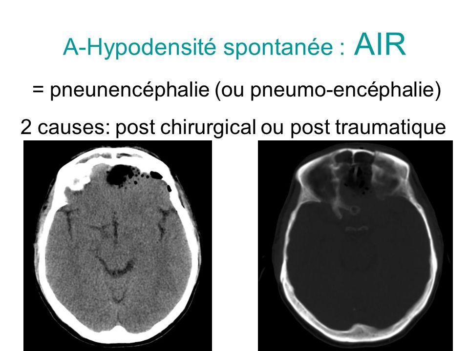 A-Hypodensité spontanée : AIR = pneunencéphalie (ou pneumo-encéphalie) 2 causes: post chirurgical ou post traumatique