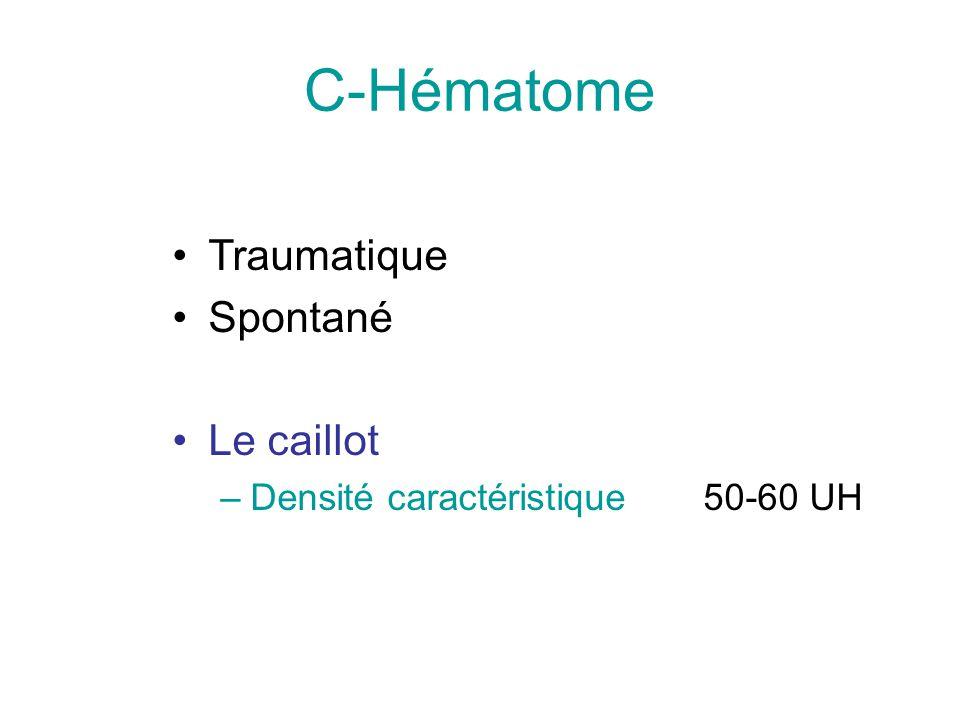 C-Hématome Traumatique Spontané Le caillot –Densité caractéristique 50-60 UH