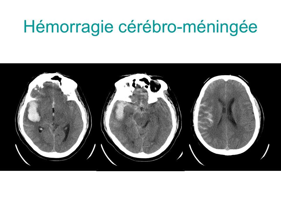 Hémorragie cérébro-méningée