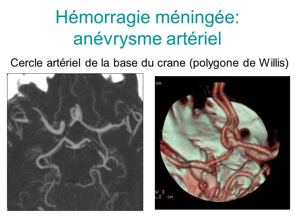 Hémorragie méningée: anévrysme artériel Cercle artériel de la base du crane (polygone de Willis)