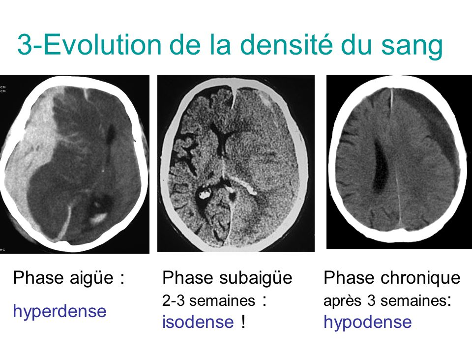3-Evolution de la densité du sang Phase aigüe : hyperdense Phase subaigüe 2-3 semaines : isodense ! Phase chronique après 3 semaines : hypodense