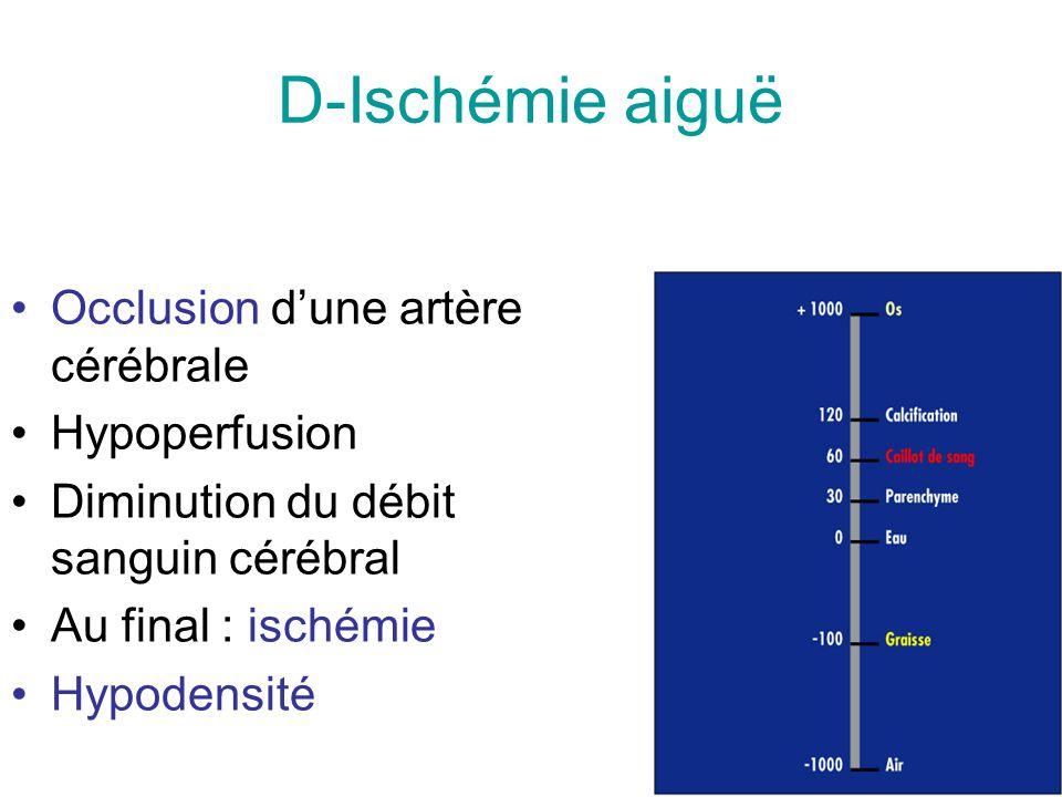 D-Ischémie aiguë Occlusion dune artère cérébrale Hypoperfusion Diminution du débit sanguin cérébral Au final : ischémie Hypodensité
