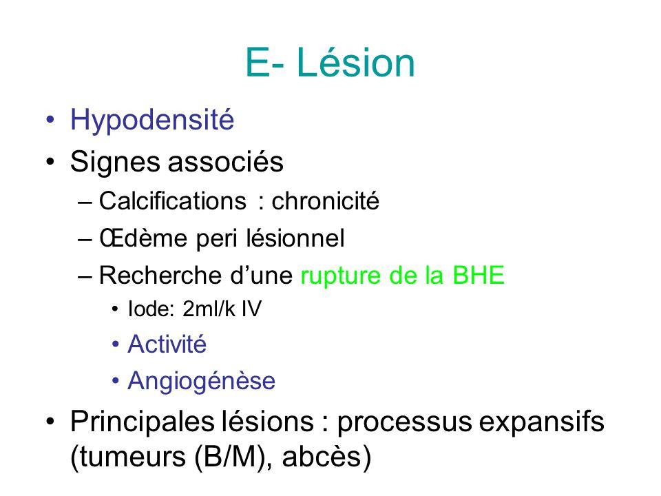 E- Lésion Hypodensité Signes associés –Calcifications : chronicité –Œdème peri lésionnel –Recherche dune rupture de la BHE Iode: 2ml/k IV Activité Angiogénèse Principales lésions : processus expansifs (tumeurs (B/M), abcès)