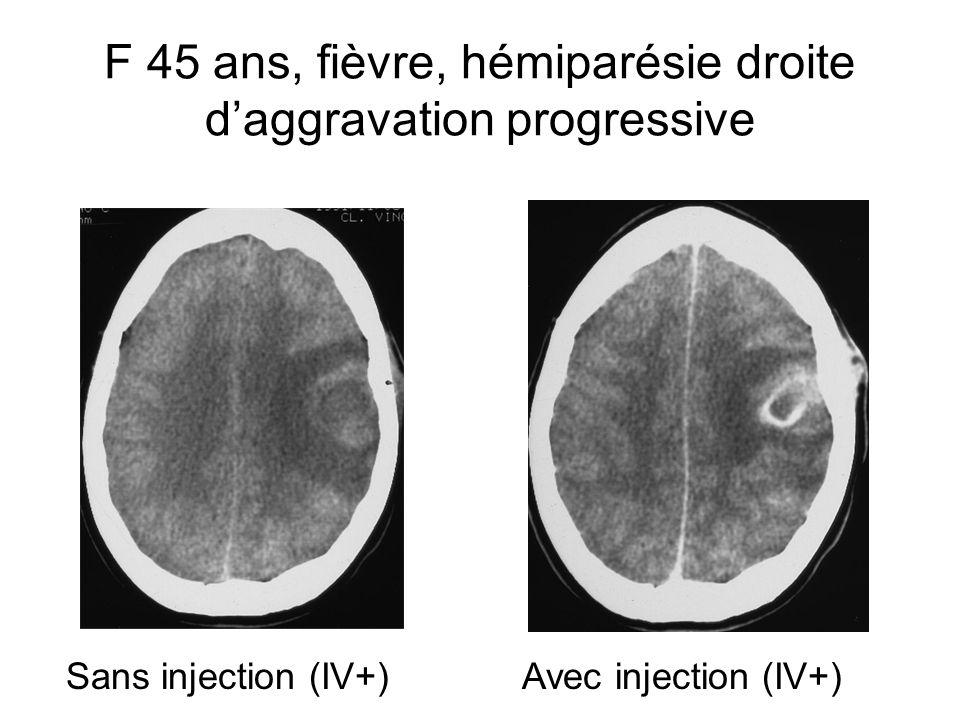 F 45 ans, fièvre, hémiparésie droite daggravation progressive Sans injection (IV+)Avec injection (IV+)