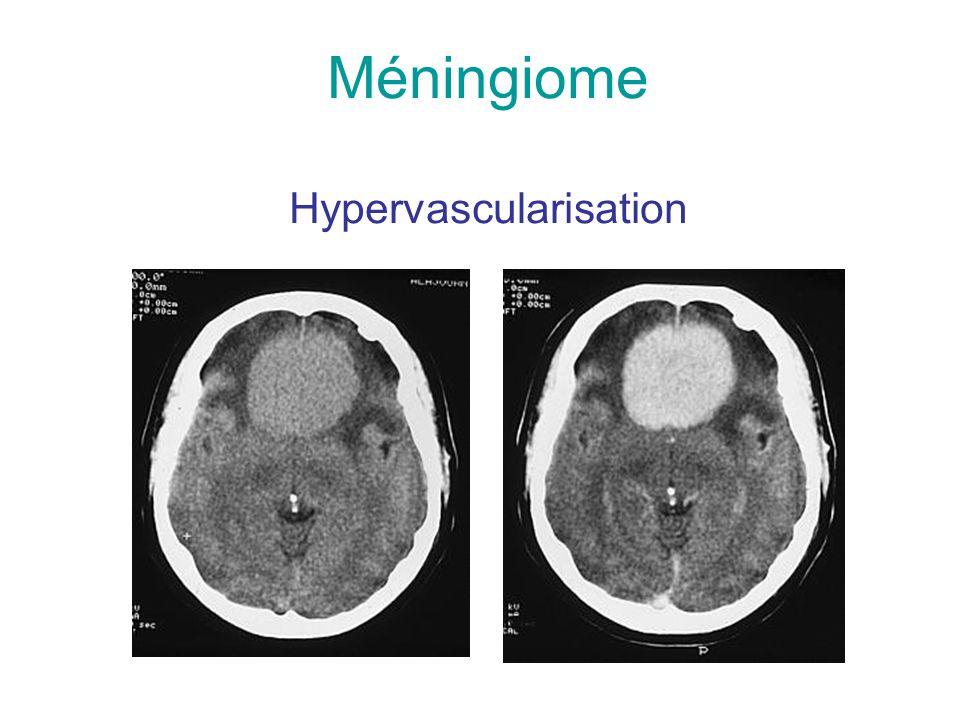 Méningiome Hypervascularisation