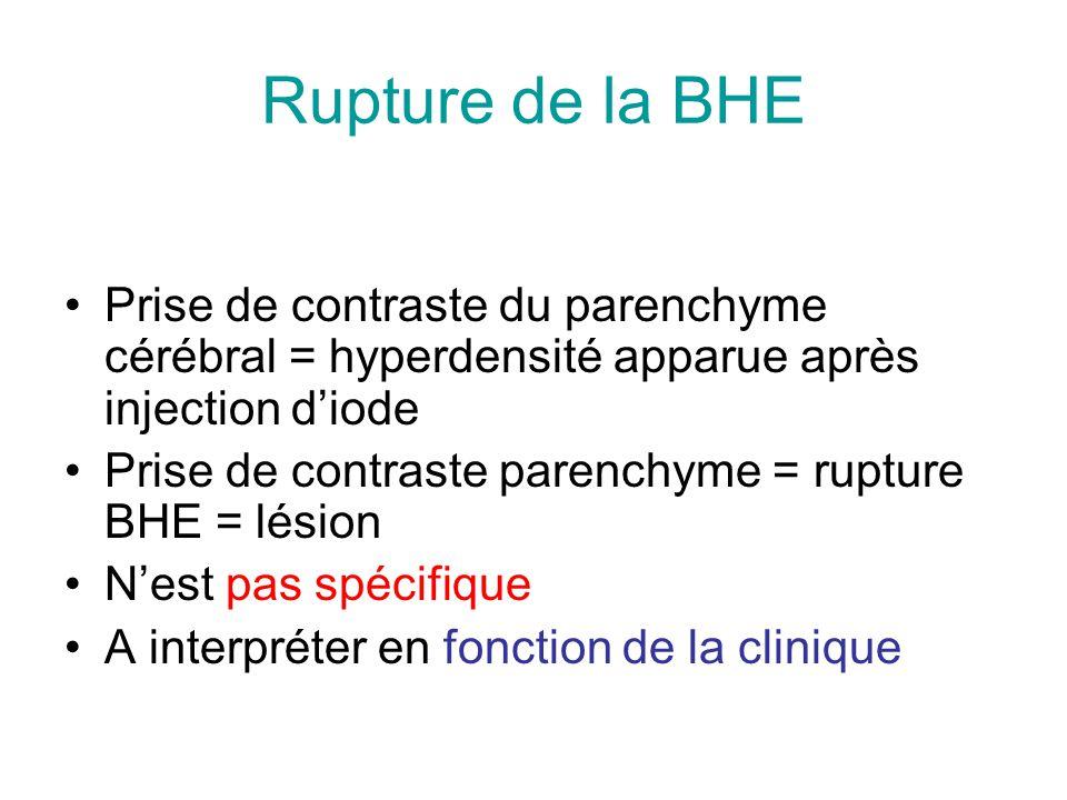 Prise de contraste du parenchyme cérébral = hyperdensité apparue après injection diode Prise de contraste parenchyme = rupture BHE = lésion Nest pas s