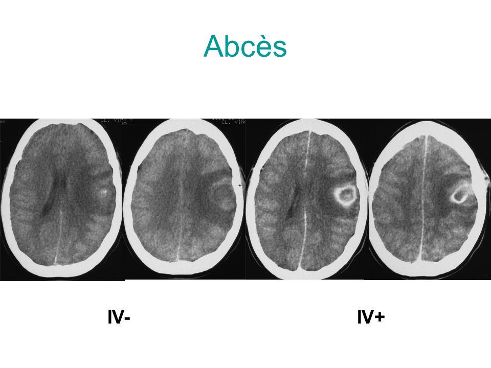 Abcès IV-IV+