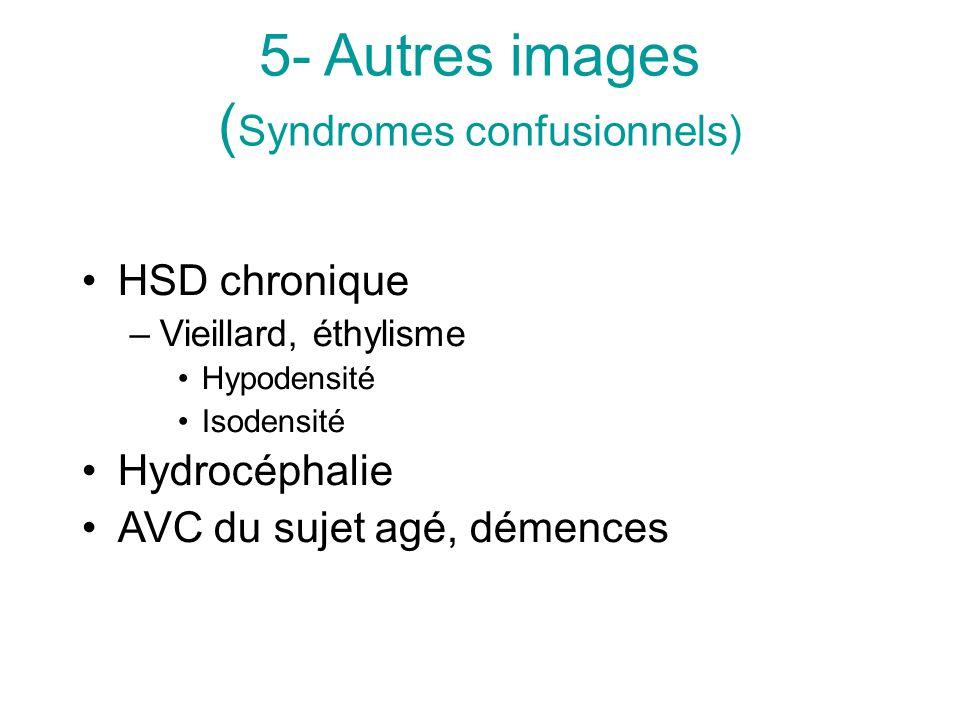 5- Autres images ( Syndromes confusionnels) HSD chronique –Vieillard, éthylisme Hypodensité Isodensité Hydrocéphalie AVC du sujet agé, démences