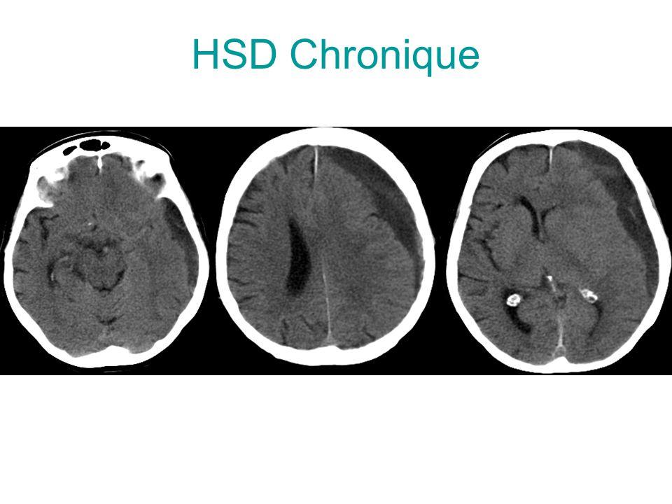 HSD Chronique