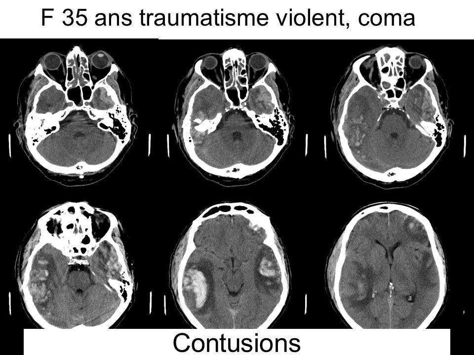 Contusions F 35 ans traumatisme violent, coma