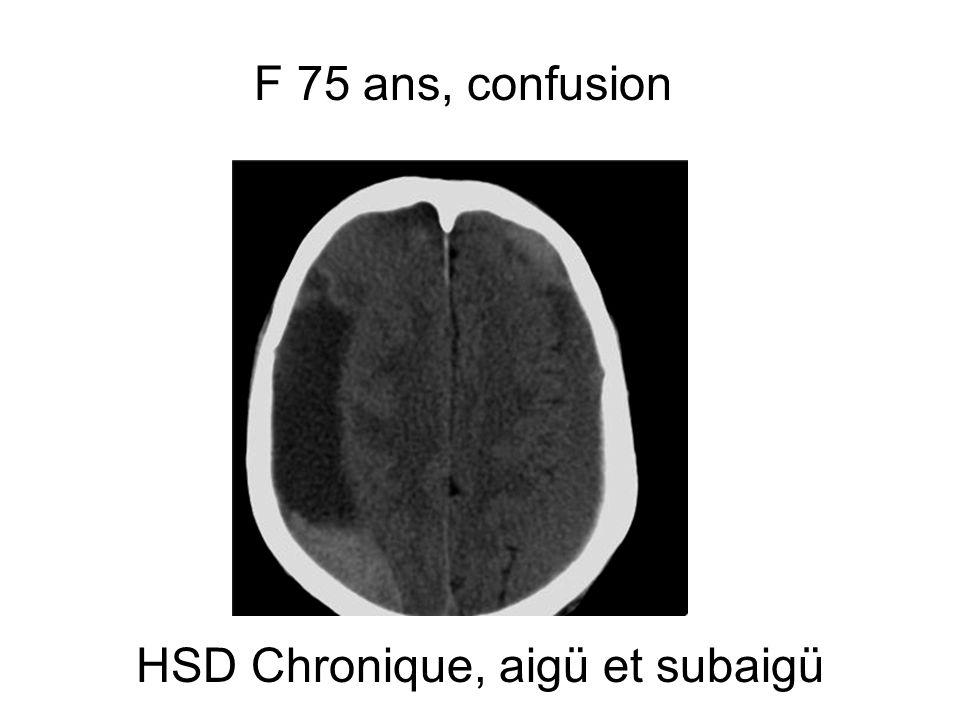 HSD Chronique, aigü et subaigü F 75 ans, confusion