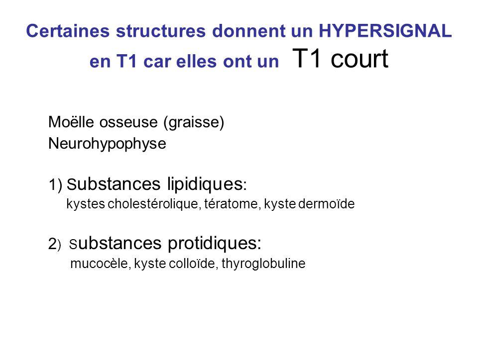 Certaines structures donnent un HYPERSIGNAL en T1 car elles ont un T1 court Moëlle osseuse (graisse) Neurohypophyse 1) S ubstances lipidiques : kystes cholestérolique, tératome, kyste dermoïde 2 ) S ubstances protidiques: mucocèle, kyste colloïde, thyroglobuline