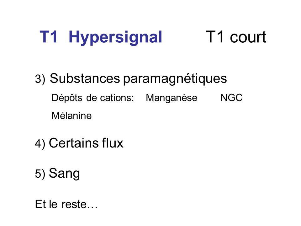 T1 Hypersignal T1 court 3) Substances paramagnétiques Dépôts de cations: Manganèse NGC Mélanine 4) Certains flux 5) Sang Et le reste…