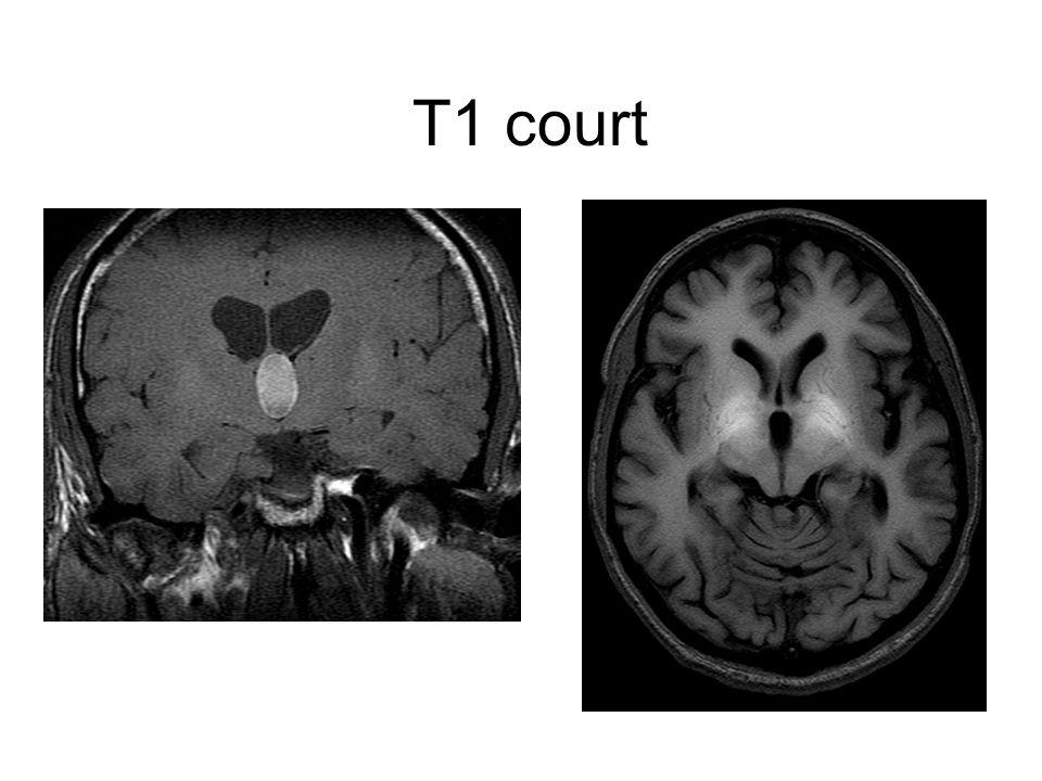 T1 court