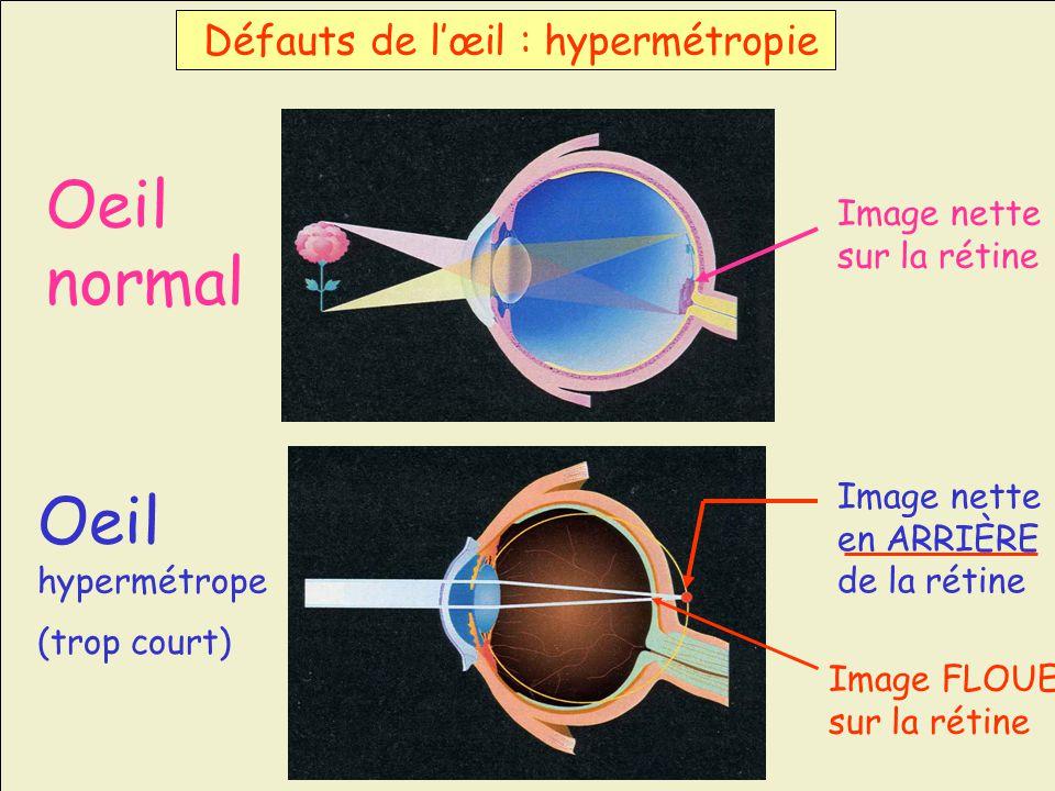 Oeil normal Image nette sur la rétine Image nette en ARRIÈRE de la rétine Défauts de lœil : hypermétropie Image FLOUE sur la rétine Oeil hypermétrope
