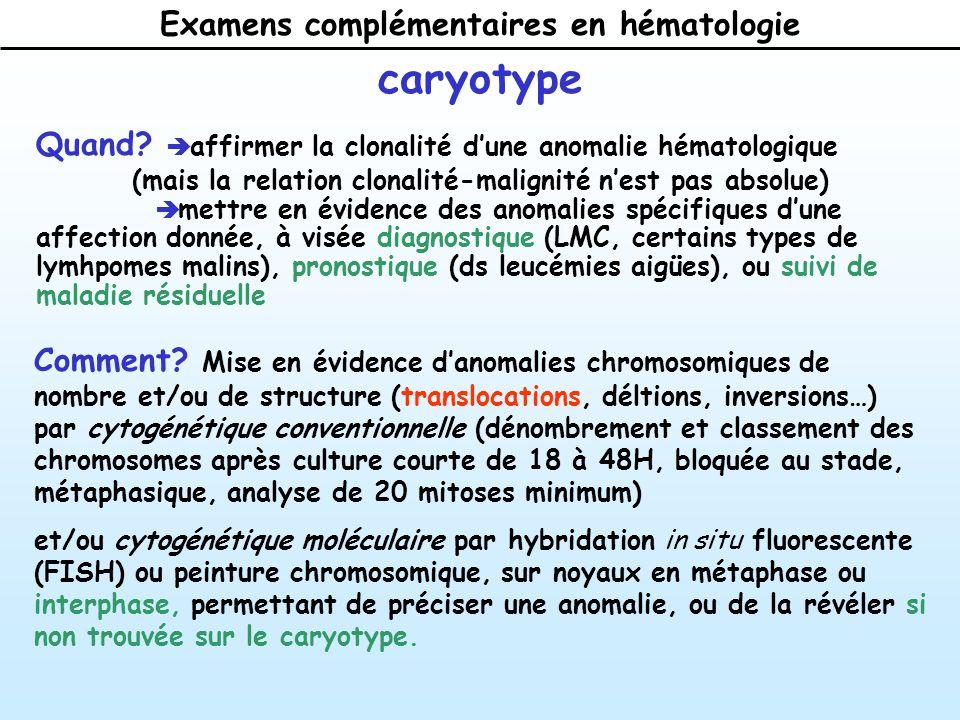 Examens complémentaires en hématologie caryotype Quand.