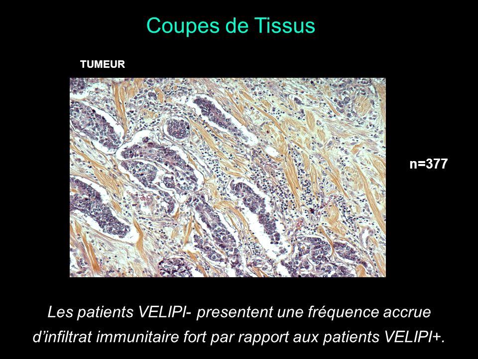 TUMEUR Les patients VELIPI- presentent une fréquence accrue dinfiltrat immunitaire fort par rapport aux patients VELIPI+. Coupes de Tissus n=377