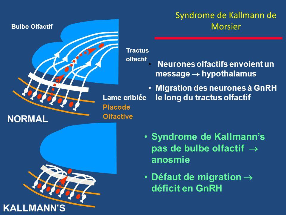 Syndrome de Kallmann de Morsier Neurones olfactifs envoient un message hypothalamus Migration des neurones à GnRH le long du tractus olfactif Tractus olfactif Lame criblée Placode Olfactive Bulbe Olfactif NORMAL KALLMANNS Syndrome de Kallmanns pas de bulbe olfactif anosmie Défaut de migration déficit en GnRH