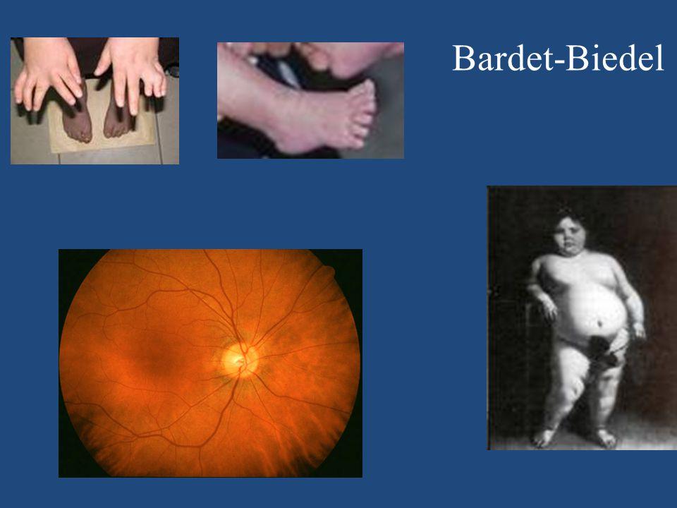 Bardet-Biedel