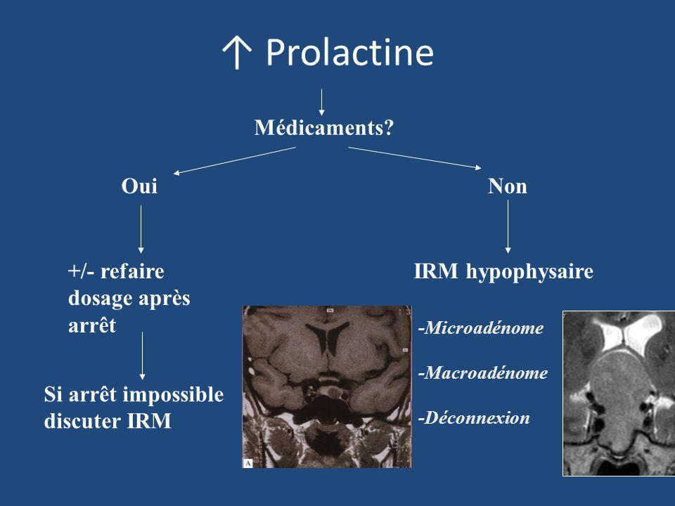 Prolactine Médicaments? Oui +/- refaire dosage après arrêt Si arrêt impossible discuter IRM Non IRM hypophysaire -Microadénome -Macroadénome -Déconnex