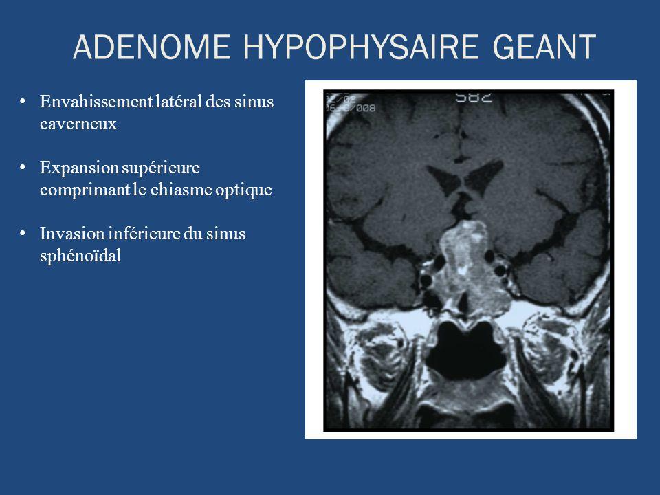 ADENOME HYPOPHYSAIRE GEANT Envahissement latéral des sinus caverneux Expansion supérieure comprimant le chiasme optique Invasion inférieure du sinus s