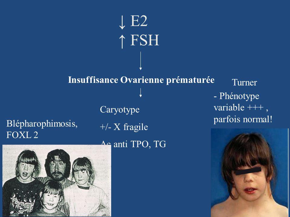 Caryotype +/- X fragile Ac anti TPO, TG Insuffisance Ovarienne prématurée E2 FSH Turner - Phénotype variable +++, parfois normal! Blépharophimosis, FO