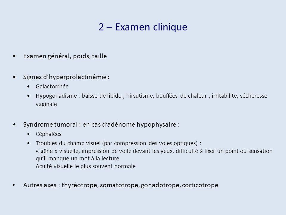 2 – Examen clinique Examen général, poids, taille Signes dhyperprolactinémie : Galactorrhée Hypogonadisme : baisse de libido, hirsutisme, bouffées de