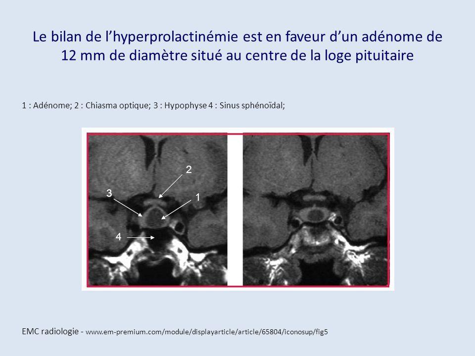 Le bilan de lhyperprolactinémie est en faveur dun adénome de 12 mm de diamètre situé au centre de la loge pituitaire 1 : Adénome; 2 : Chiasma optique;