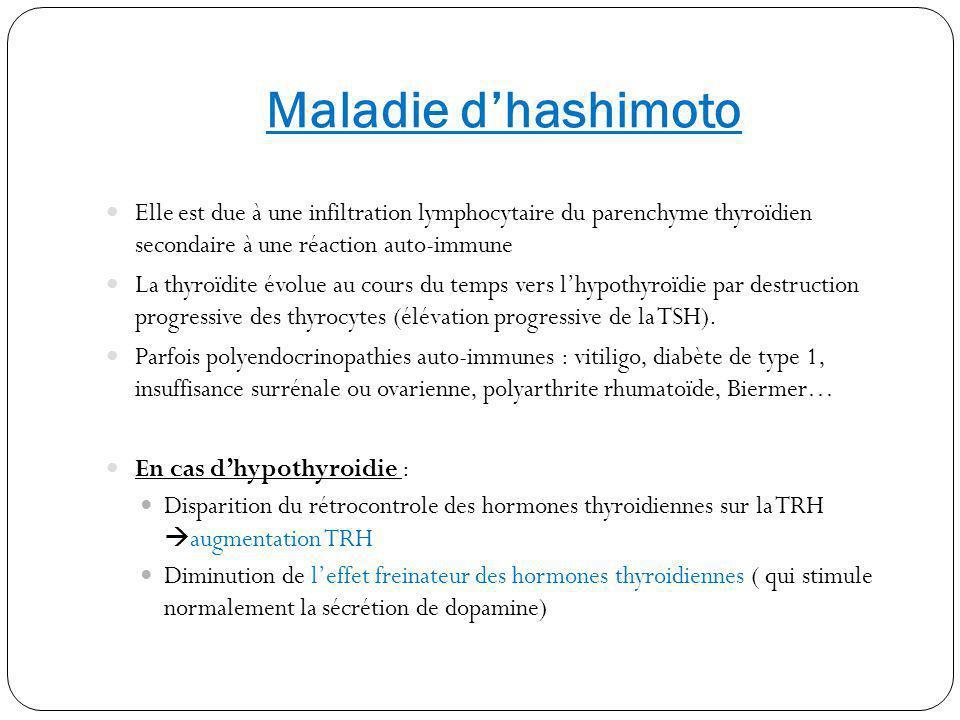 Conduite diagnostique devant une hyperprolactinémie (2) Examens complémentaires : Biologiques: HCG, Dosage TSH/T4 ( ionogramme sanguin + créatininémie, bilan hépatique en fonction du contexte) Consultation ophtalmologique (champs visuel + test de lancaster) IRM cérébrale avec coupes coronales ( surtt si prolactinémie >200, SC évoquant un adénome hypophysaire ou tumeurs cérébrales, hyperprolactinémie persistante) Ostéodensitométrie à prévoir ( ostéoporose?)