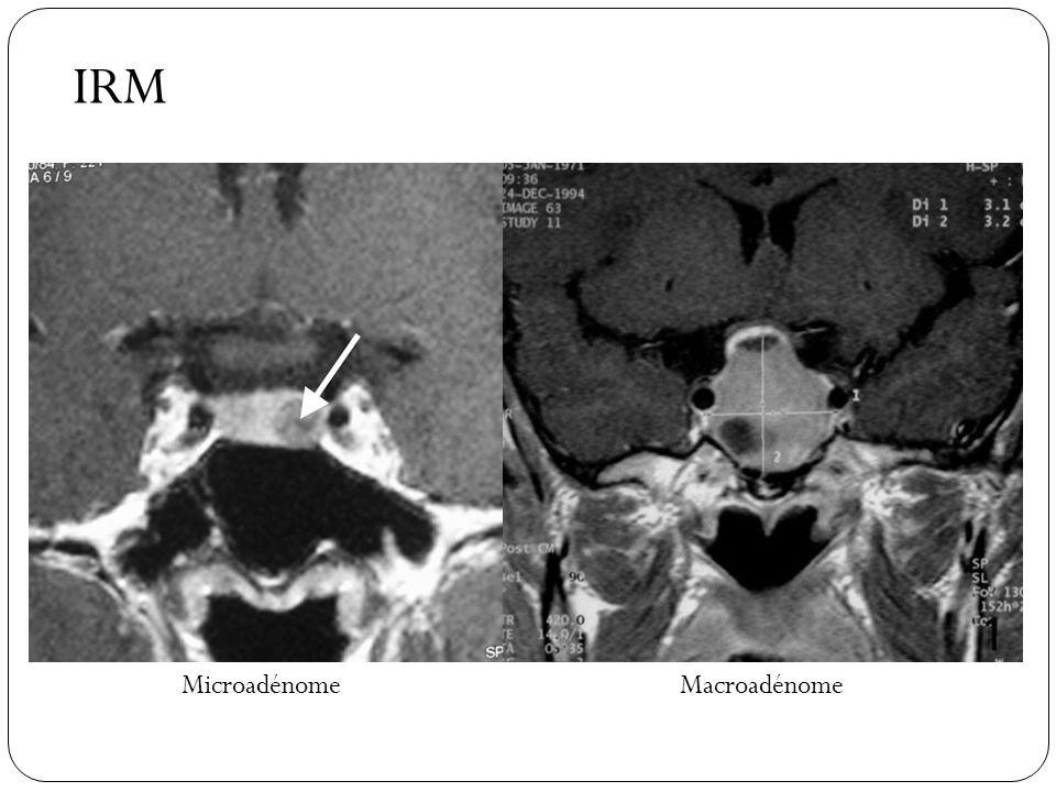 MicroadénomeMacroadénome IRM
