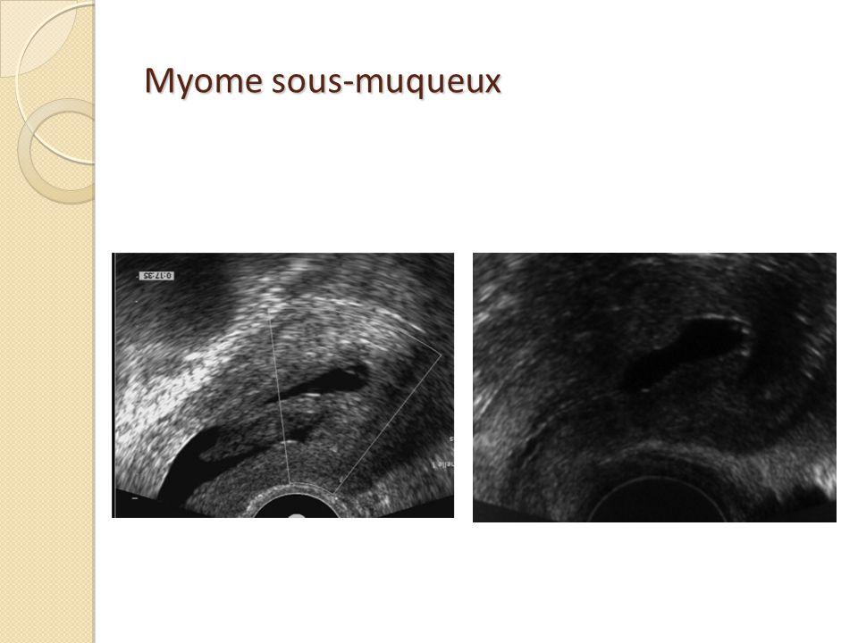 Myome sous-muqueux