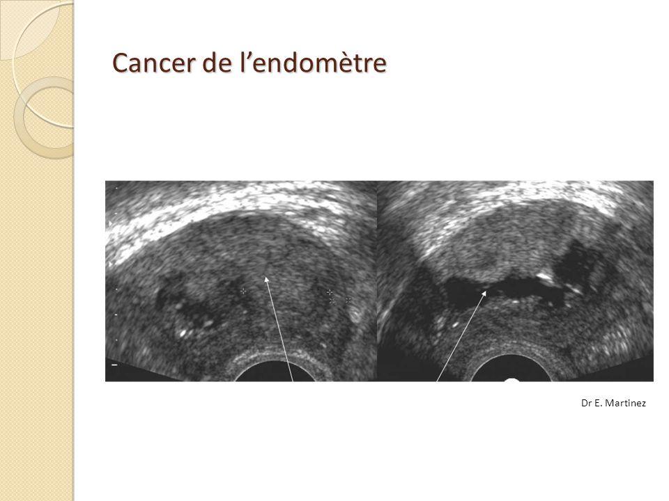 Cancer de lendomètre Dr E. Martinez
