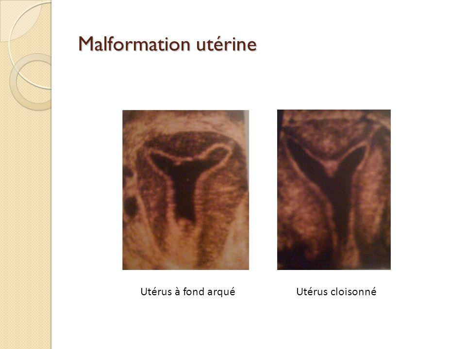 Malformation utérine Utérus cloisonnéUtérus à fond arqué