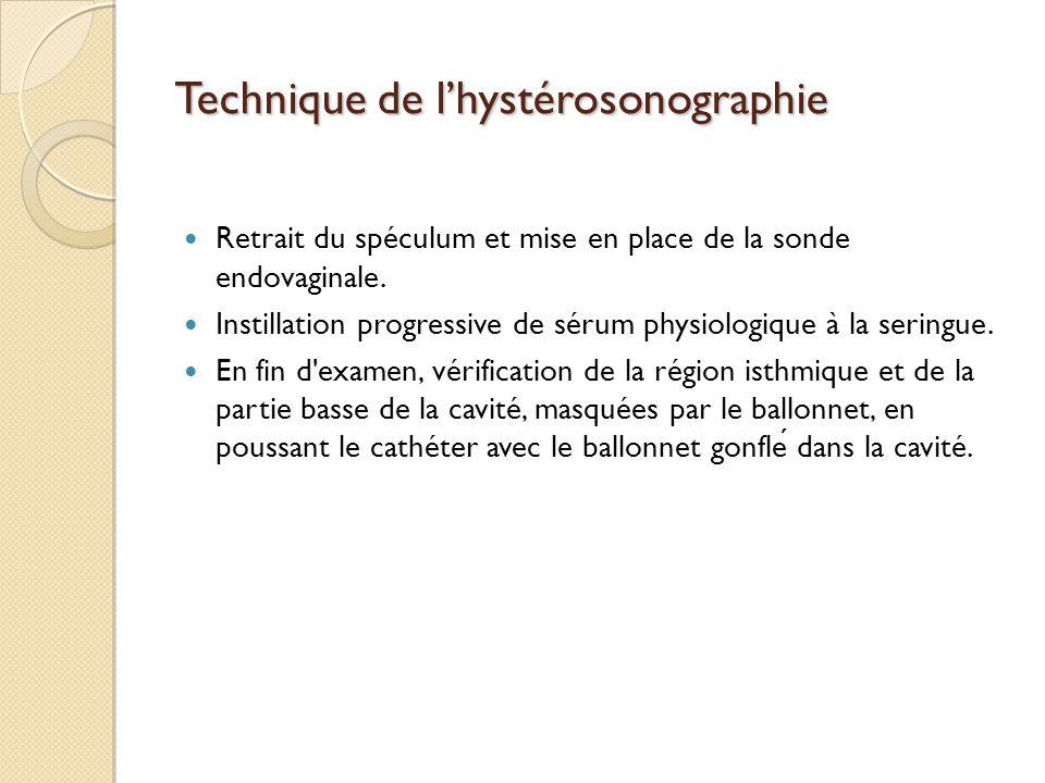 Technique de lhystérosonographie Retrait du spéculum et mise en place de la sonde endovaginale. Instillation progressive de sérum physiologique à la s
