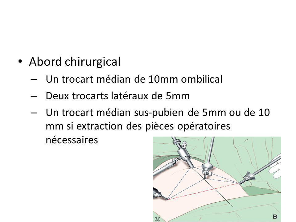 Abord chirurgical – Un trocart médian de 10mm ombilical – Deux trocarts latéraux de 5mm – Un trocart médian sus-pubien de 5mm ou de 10 mm si extractio